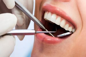 implantes-dentales-en-bilbao-3