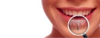 clinica dental implantes en Alicante