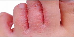 hongos en los pies sin picor